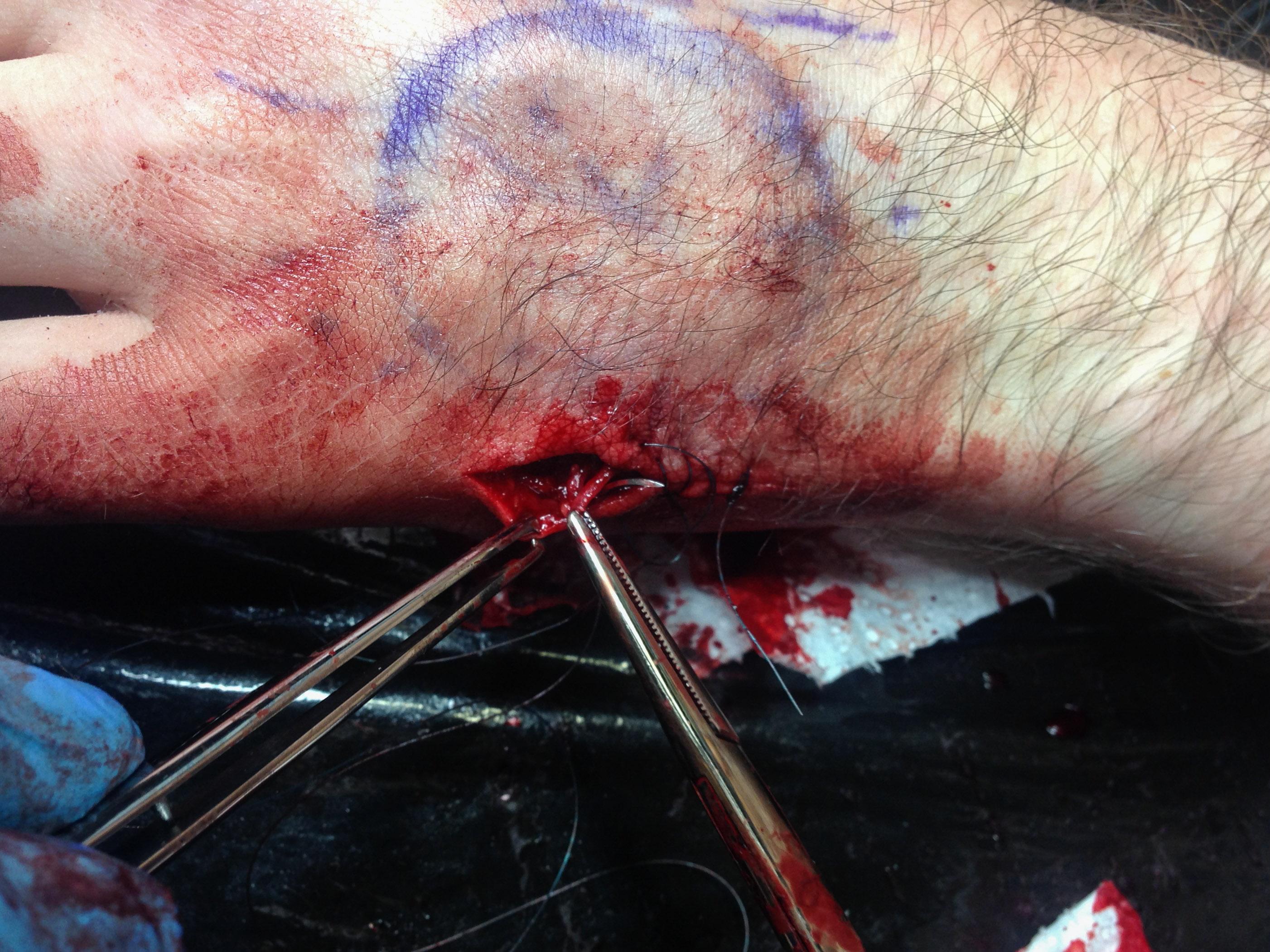 Рана ушивается нейлоновой «леской» с одноразовыми иглами