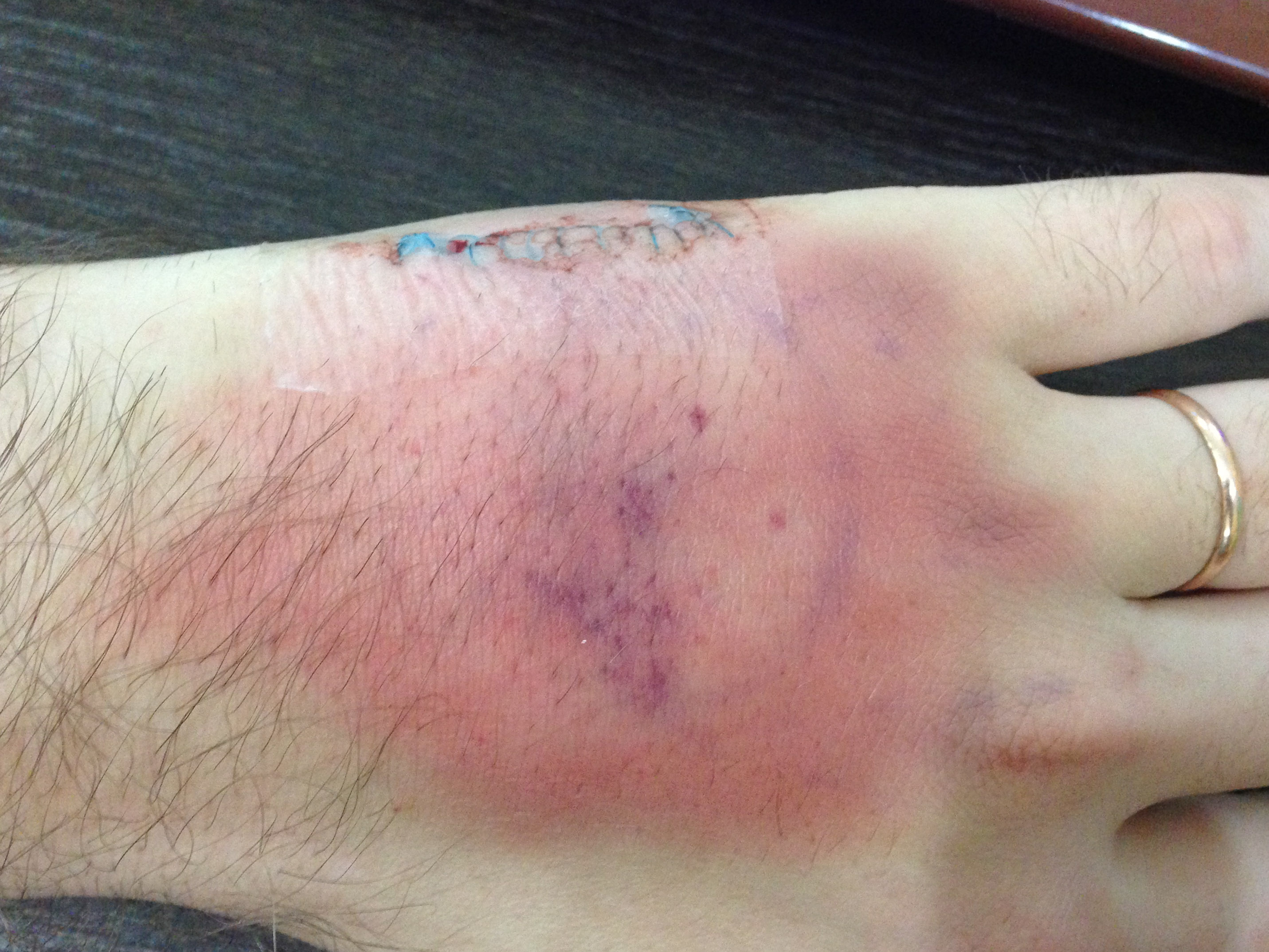 На следующий день рука выглядела не очень хорошо, несмотря на прием препаратов
