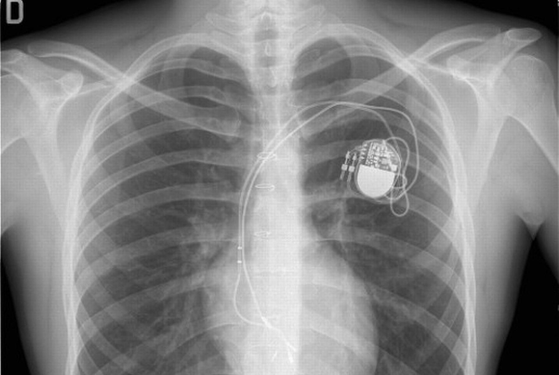 Эксперты обнаружили и эксплуатировали «смертельные» уязвимости в кардиостимуляторах
